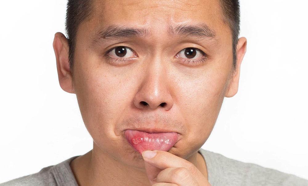 Стоматит - симптомы, причины и лечение