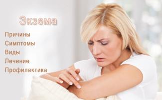 Экзема. Причины, симптомы, виды и лечение экземы